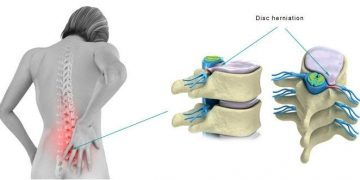 Get Help For A Herniated Disc From Pars Health Clinic